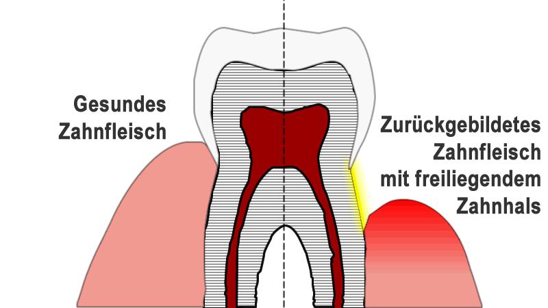 Pflanzliche & antibiotische Spülung bei Zahnfleischentzündung & empfindlichen Zähnen